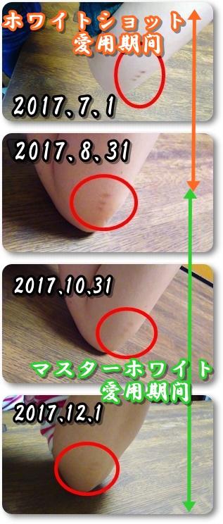 2017.7~2017.12.1